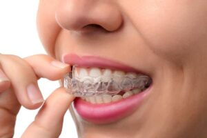 Toronto Invisalign: Straight Teeth – No Braces!