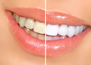 Professional Teeth Whitening in Toronto